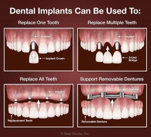 "<img src=""dental implant all-on-4 bridge.jpg"" alt="" dental implants all-on-4 implant options"">"