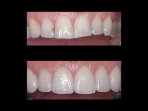 """<img src=""""dental veneers.jpg"""" alt=""""smile makeover before and after"""">"""