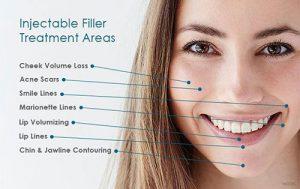 """<img src=""""dermal filler.jpg"""" alt=""""lady with facial areas for dermal filler"""">"""