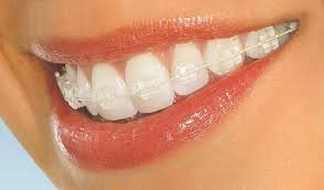"<img src=""clear adult brace on teeth.jpg"" alt=""invisible clear braces""></noscript>"" width=""293″ height=""172″></p><p>We always discuss and demonstrate the best method of cleaning with you during your consultation and brace fitting appointments, as well as during the follow-up review visits to make sure everyone is able to look after their teeth properly.</p><h2>Cosmetic Dentistry Treatments</h2><p>Alongside clear braces these days modern cosmetic dentistry choices have developed considerably over the years. Alternatives to braces include treatments such as <a href="