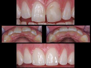 "<img src=""before and after porcelain veneers.jpg"" alt=""smiel makeover with dental veneers"">"