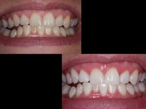 "<img src=""zoom whitening case photos.jpd"" alt=""before and after zoom teeth whitening image"">"