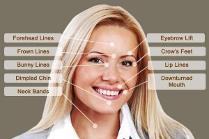 "<img src=""anti-wrinkle.jpg"" alt=""lady with facial areas for anti-wrinkle injections"">"