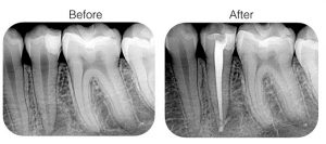 "<img src=""root canal.jpg""alt=""cosmetic dentist root canal before and after"">"