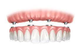 "<img src=""all-on-4.jpg"" alt=""image of all-on-4 dental implants"">"