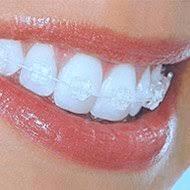 """<img src=""""Ice clear braces.jpg"""" alt=""""lady wearing ice clear braces, fast fixed and cosmetic braces"""">"""