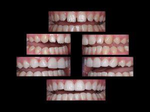 "<img src=""composite bonding.jpg"" alt="" closing space between teeth with composite bonding"">"