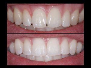 "<img src=""composite bonding upper front teeth.jpg"" alt=""composite bonding upper front teeth"">"