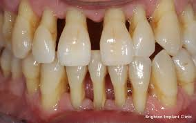 gum disease causes