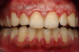 gum disease- gingivitis